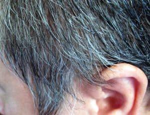 siwe włosy na skroni