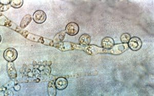 grzyby Candida albicans